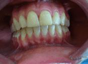 ortodoncja saska kępa