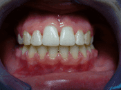 aparat na zęby warszawa