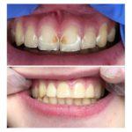 zęby przed i po